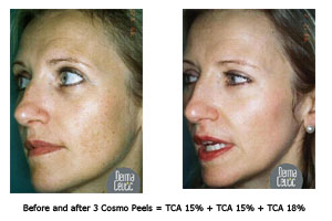 Pre and post cosmo peel